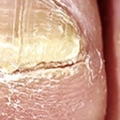 Toe Nails: the pathways to health.