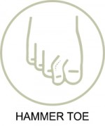 Wide Fitting Shoes For Hammertoes